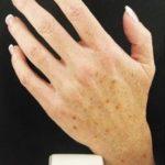 Una manicura perfecta sin manchas en la piel de las manos
