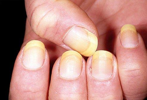Uñas amarillas después de quitar el esmalte? Soluciones para devolver su color natural